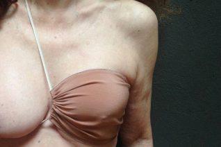 Anna Bonny: Το brand εσωρούχων που μετατρέπει τα σουτιέν μαστεκτομής σε έργα τέχνης
