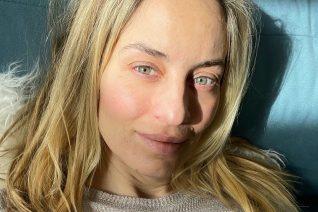 Η Ελεονώρα Μελέτη κάνει botox αλλά οι μύες του προσώπου της «αντιστέκονται»